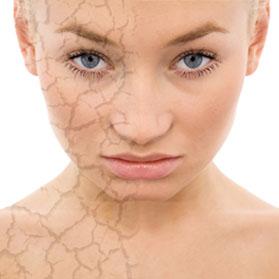 Fotoenvejeciemiento Skin Spa Alicante