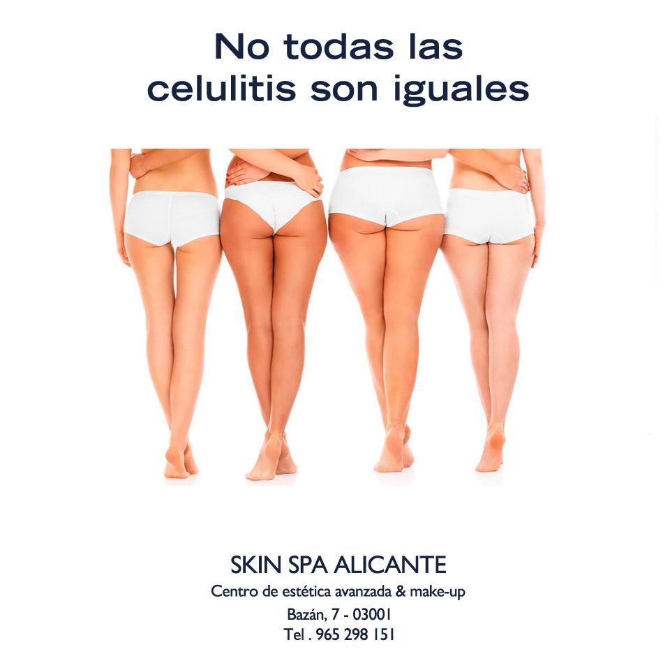 Tratamiento especifico celulitis